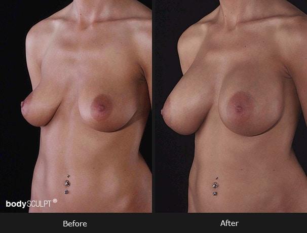 Composite Breast Augmentation - Patient 1