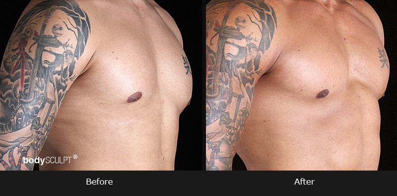 Pectoral Implants - Before & After Photos
