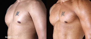 Pectoral Implants - Before and After Photos