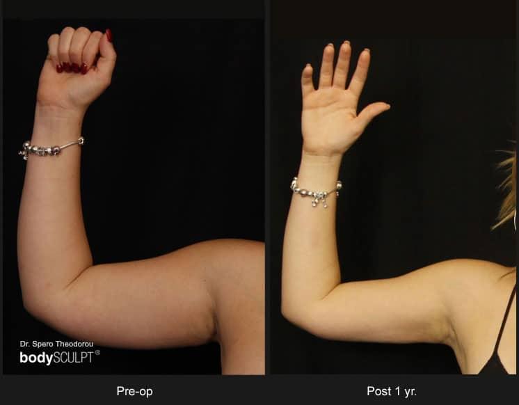 Scarless Female Arm Lift
