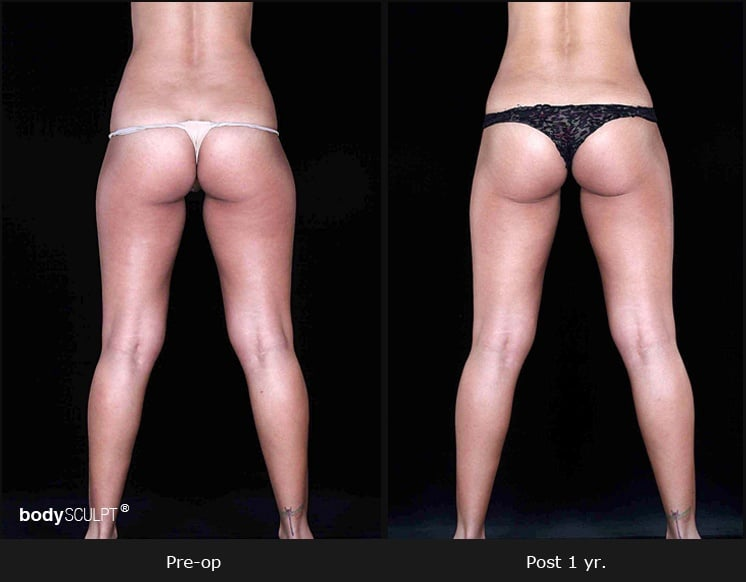 Leg and Thighs Liposuction - Before & After Photos