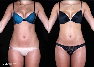 SmartLipo Triplex Liposuction - Before and After Photos