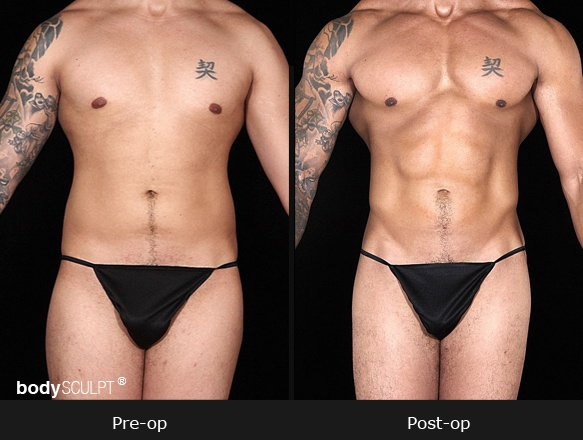 SmartLipo Abdomen - Before & After Photos (Men)