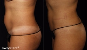 SmartLipo Abdomen - Before and After Photos