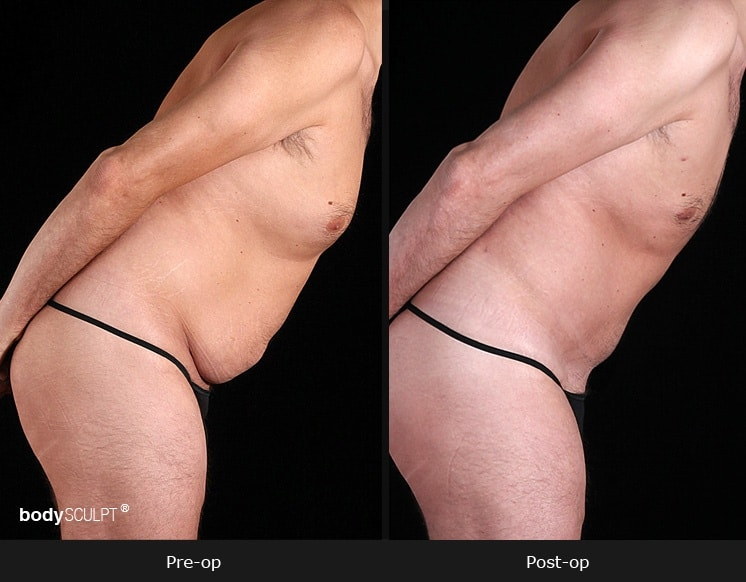 Male Tummy Tuck - Before & After Photos
