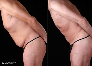 Male Tummy Tuck - Before and After Photos