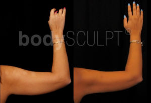 Scarless Arm Lift