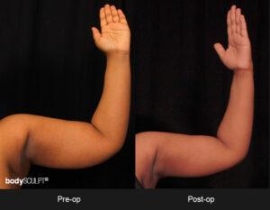 BodyTite Scarless Arm Lift