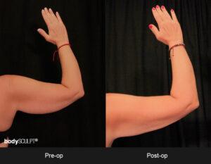 Scarless Arm Lift Surgery